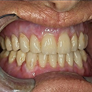 Composite denture staining